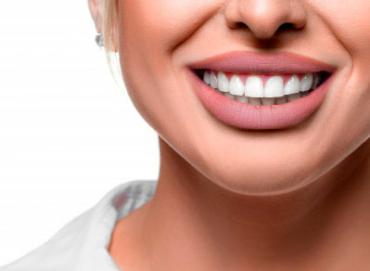 Blanqueamiento dental, tratamiento odontológico
