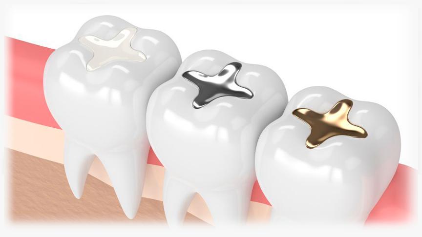 Odontología restauradora Madrid